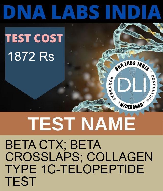 BETA CTx; BETA CROSSLAPS; COLLAGEN TYPE 1C-TELOPEPTIDE Test