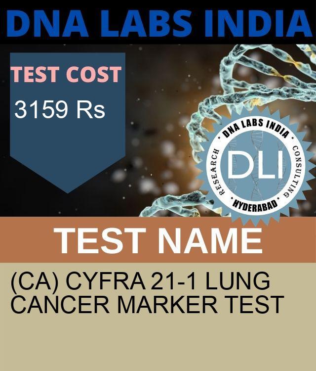 (CA) CYFRA 21-1 LUNG CANCER MARKER Test