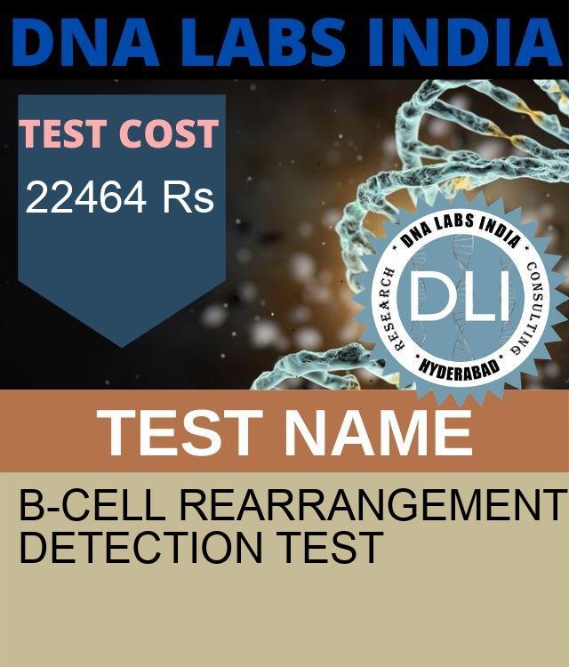 B-CELL REARRANGEMENT DETECTION Test