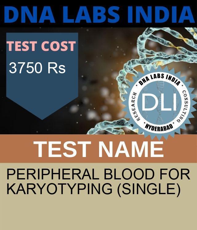 Peripheral blood for karyotyping (SINGLE)